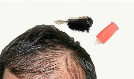育毛にはイクオスが効果的?イクオスの特徴とその実態に迫る!